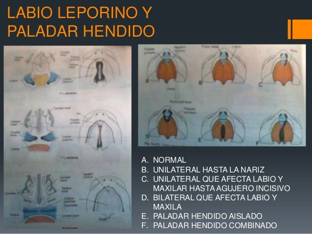 Embriologia, anatomia y clasificacion de labio y