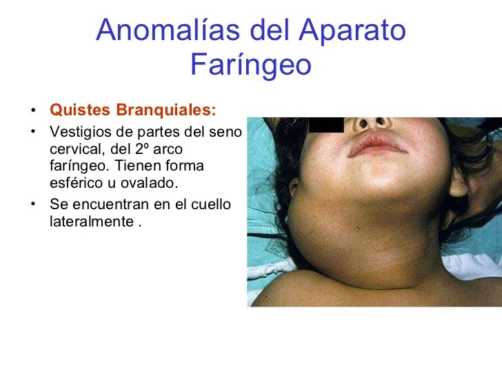 Lujoso Anatomía Quiste Branquial Bosquejo - Anatomía de Las ...