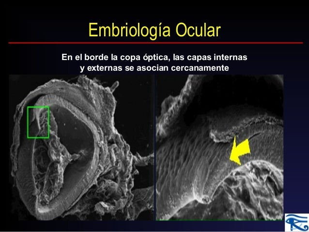 Embriologia Do Olho