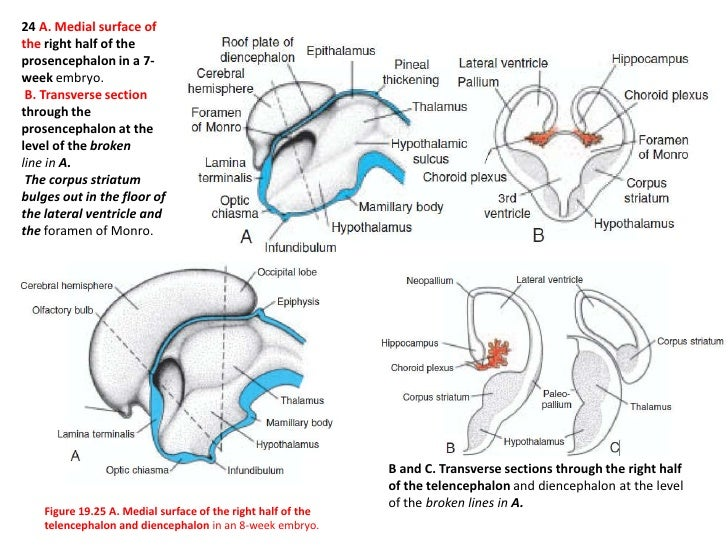 Hydrocephaly develops in virtually every case of spina bifida cystica because the spinal cord is tethered to the vertebral...