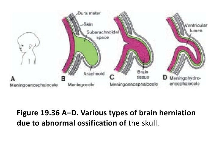 In the myelencephalon the column is represented by neurons of the accessory, vagus, and glossopharyngeal nerves.