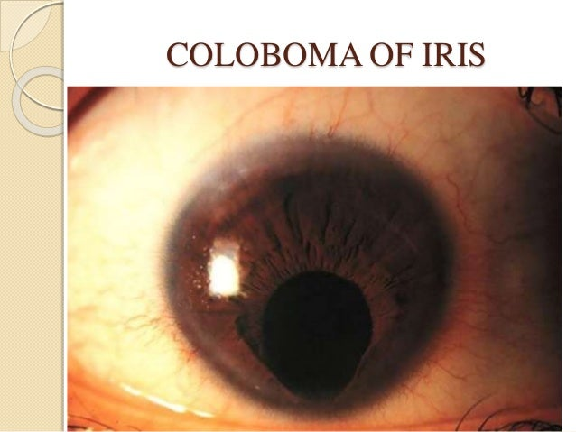 aniridia a panocular developmental malformation essay Malformations of cortical development (mcd) result from disruptions in the  complex process of the human brain cortex formation and are highly associated  to.