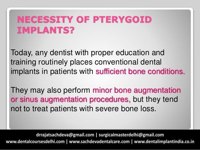 Emergence of pterygoid implants Slide 2