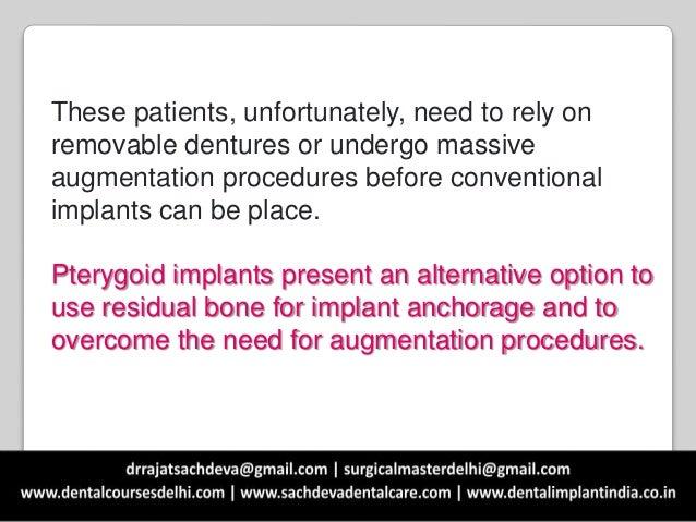 Emergence of pterygoid implants Slide 3