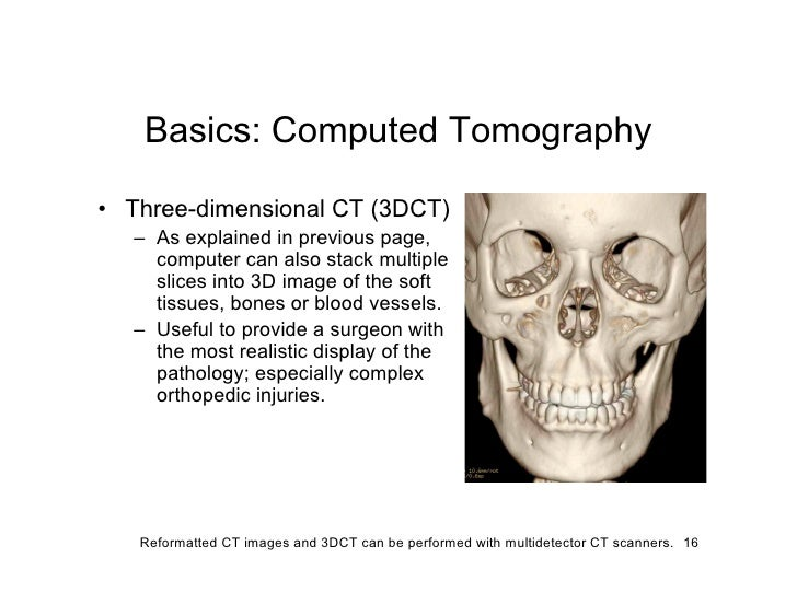 Basics: Computed Tomography  • Three-dimensional CT (3DCT)   – As explained in previous page,     computer can also stack ...