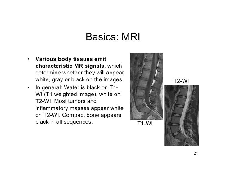 Basics: MRI  •   Various body tissues emit     characteristic MR signals, which     determine whether they will appear    ...
