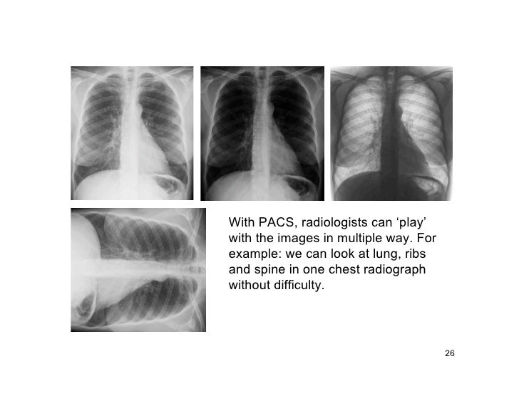 With PACS, radiologists can 'play' with the images in multiple way. For example: we can look at lung, ribs and spine in on...