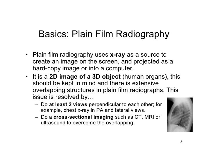 Basics: Plain Film Radiography  • Plain film radiography uses x-ray as a source to   create an image on the screen, and pr...