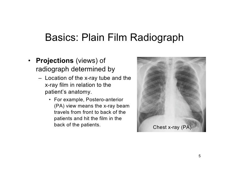 Basics: Plain Film Radiograph  • Projections (views) of   radiograph determined by    – Location of the x-ray tube and the...