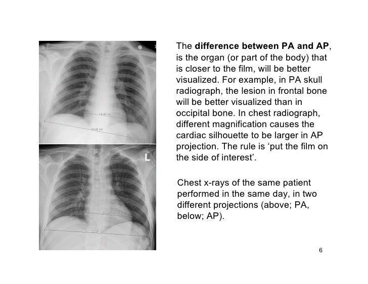 The difference between PA and AP, is the organ (or part of the body) that is closer to the film, will be better visualized...