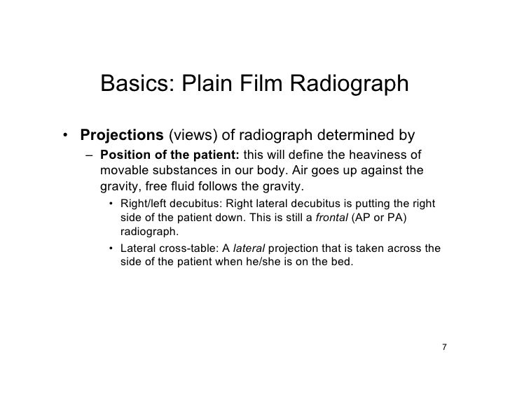 Basics: Plain Film Radiograph  • Projections (views) of radiograph determined by    – Position of the patient: this will d...