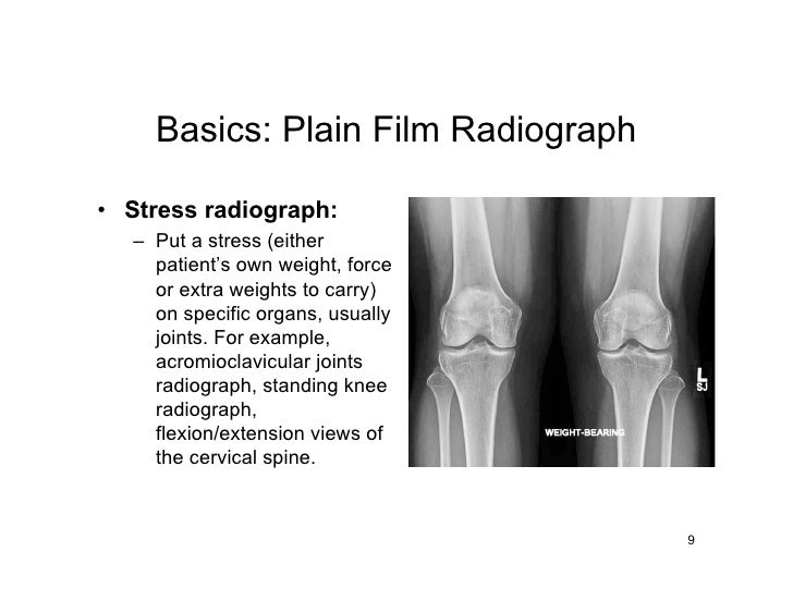 Basics: Plain Film Radiograph  • Stress radiograph:   – Put a stress (either     patient's own weight, force     or extra ...