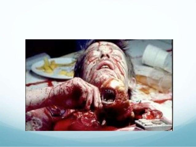 https://image.slidesharecdn.com/emergencythoracotomy-141009031040-conversion-gate01/95/emergency-thoracotomy-2-638.jpg?cb=1412824307