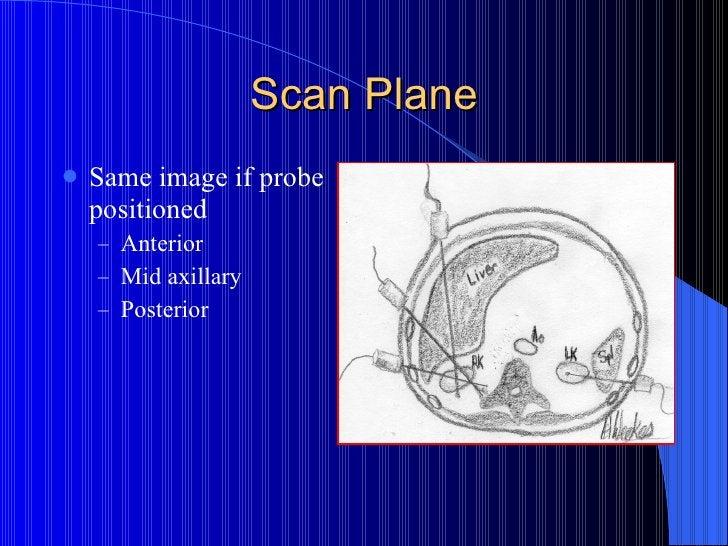 Scan Plane <ul><li>Same image if probe positioned </li></ul><ul><ul><li>Anterior </li></ul></ul><ul><ul><li>Mid axillary <...