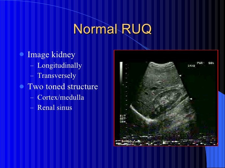 Normal RUQ <ul><li>Image kidney  </li></ul><ul><ul><li>Longitudinally </li></ul></ul><ul><ul><li>Transversely </li></ul></...