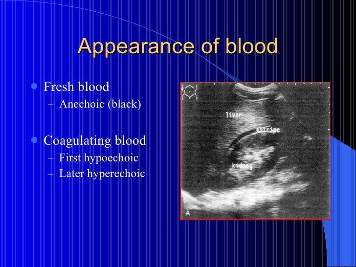 Appearance of blood <ul><li>Fresh blood  </li></ul><ul><ul><li>Anechoic (black) </li></ul></ul><ul><li>Coagulating blood <...