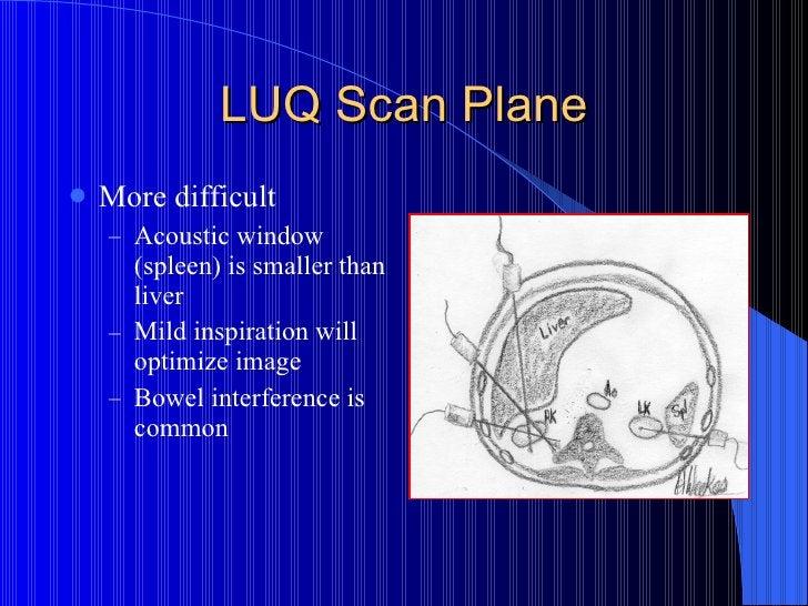 LUQ Scan Plane <ul><li>More difficult </li></ul><ul><ul><li>Acoustic window (spleen) is smaller than liver </li></ul></ul>...