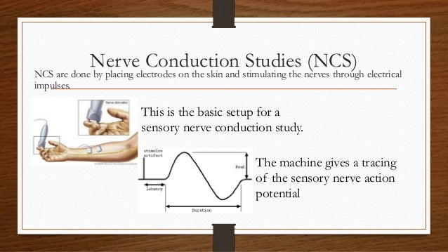 Video: What is EMG/NCS? - Spine-Health