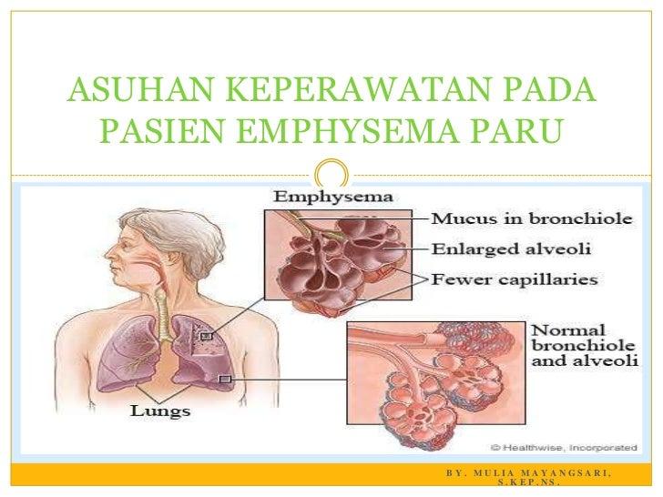 ASUHAN KEPERAWATAN PADA PASIEN EMPHYSEMA PARU                BY. MULIA MAYANGSARI,                       S.KEP.NS.