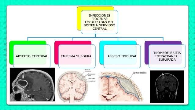 INFECCIONES PIÓGENAS LOCALIZADAS DEL SISTEMA NERVIOSO CENTRAL ABSCESO CEREBRAL EMPIEMA SUBDURAL ABSESO EPIDURAL TROMBOFLEB...