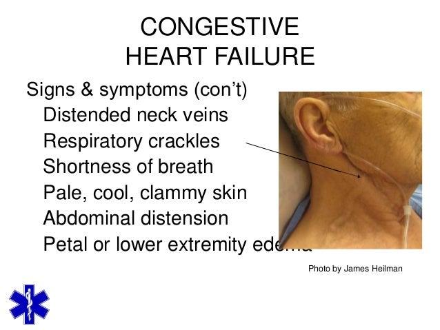 The Heart and Vascular Disease - MedicineNet