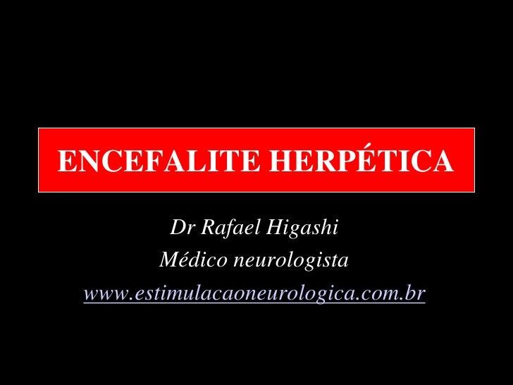 ENCEFALITE HERPÉTICA         Dr Rafael Higashi        Médico neurologista www.estimulacaoneurologica.com.br