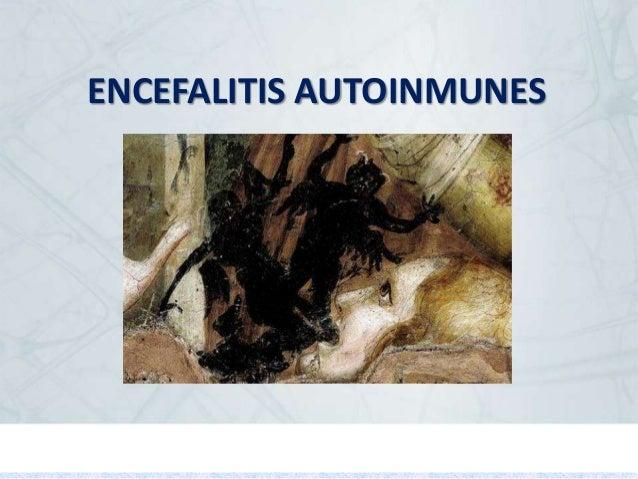 ENCEFALITIS AUTOINMUNES