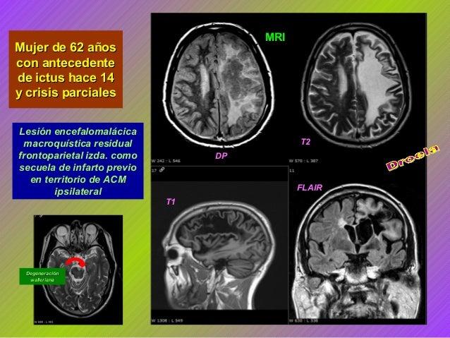 MRI  Mujer de 62 años con antecedente de ictus hace 14 y crisis parciales Lesión encefalomalácica macroquística residual f...