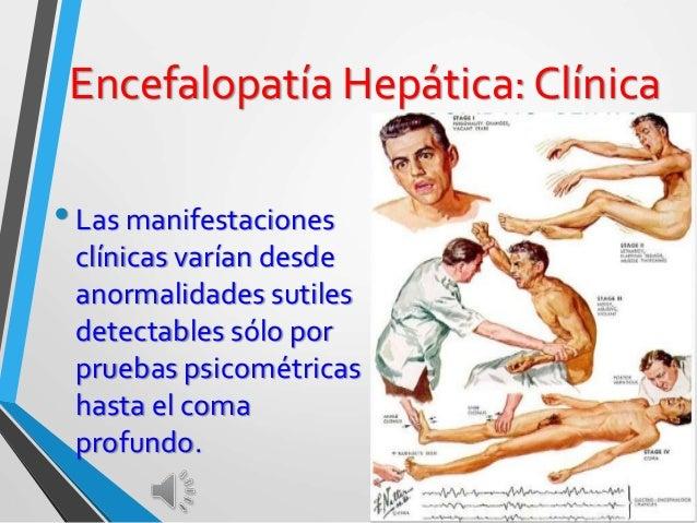 Encefalopatía Hepática: Clínica