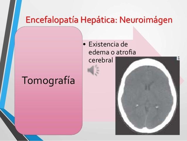 Encefalopatía Hepática: Dx Clínico Clínico: Evidencia de Falla hepática: • Sx. Ascítico-Edematoso • Ictericia • Hipertensi...