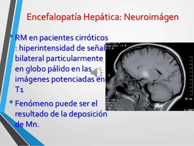 Encefalopatía hepática 2015