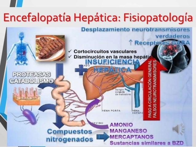 Encefalopatía Hepática: Fisiopatología