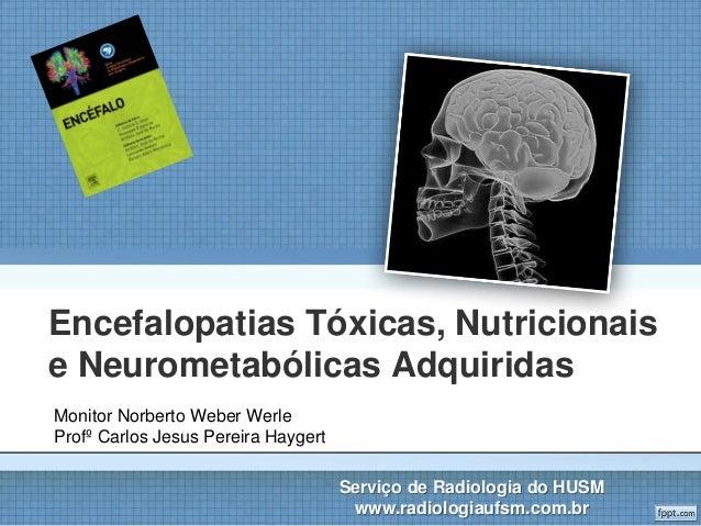 Encefalopatias Tóxicas, Nutricionais e Neurometabólicas Adquiridas Serviço de Radiologia do HUSM www.radiologiaufsm.com.br...