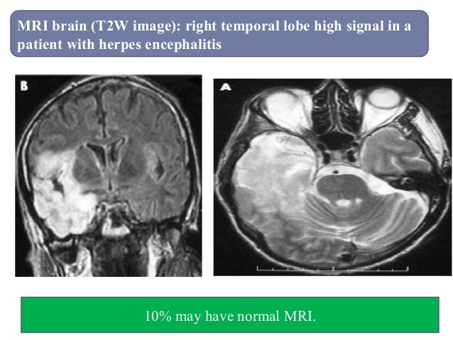MRI brain (T2W image): right temporal lobe high signal in a patient with herpes encephalitis 10% may have normal MRI.