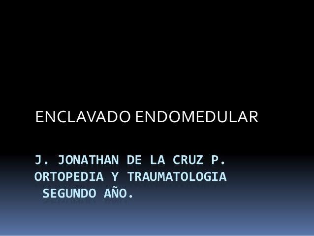 ENCLAVADO ENDOMEDULAR  J. JONATHAN DE LA CRUZ P.  ORTOPEDIA Y TRAUMATOLOGIA  SEGUNDO AÑO.