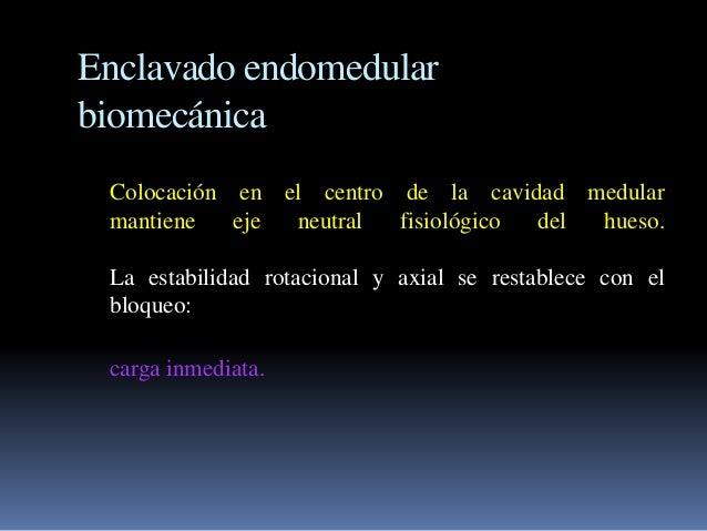 Enclavado endomedular  biomecánica  Colocación en el centro de la cavidad medular  mantiene eje neutral fisiológico del hu...
