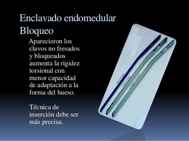 Enclavado endomedular  Bloqueo  Aparecieron los  clavos no fresados  y bloqueados  aumenta la rigidez  torsional con  meno...