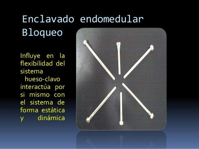 Enclavado endomedular  Bloqueo  Influye en la  flexibilidad del  sistema  hueso-clavo  interactúa por  si mismo con  el si...