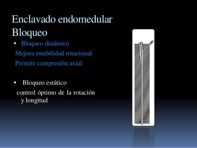 Enclavado endomedular  Bloqueo   Bloqueo dinámico  Mejora estabilidad rotacional  Permite compresión axial   Bloqueo est...