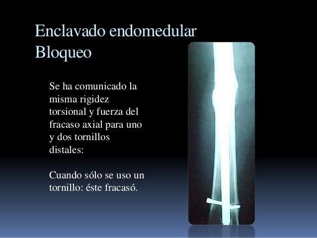 Enclavado endomedular  Bloqueo  Se ha comunicado la  misma rigidez  torsional y fuerza del  fracaso axial para uno  y dos ...