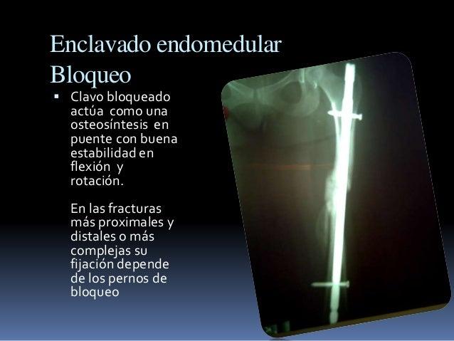 Enclavado endomedular  Bloqueo   Clavo bloqueado  actúa como una  osteosíntesis en  puente con buena  estabilidad en  fle...