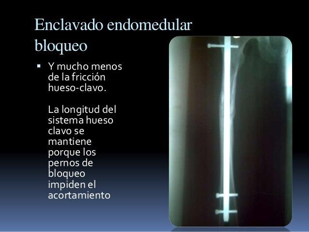 Enclavado endomedular  bloqueo   Y mucho menos  de la fricción  hueso-clavo.  La longitud del  sistema hueso  clavo se  m...