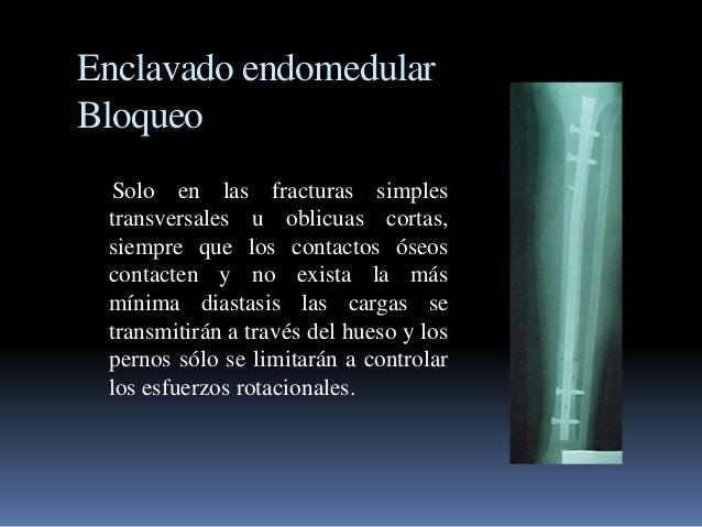 Enclavado endomedular  Bloqueo  Solo en las fracturas simples  transversales u oblicuas cortas,  siempre que los contactos...
