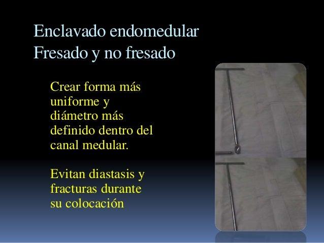Enclavado endomedular  Fresado y no fresado  Crear forma más  uniforme y  diámetro más  definido dentro del  canal medular...