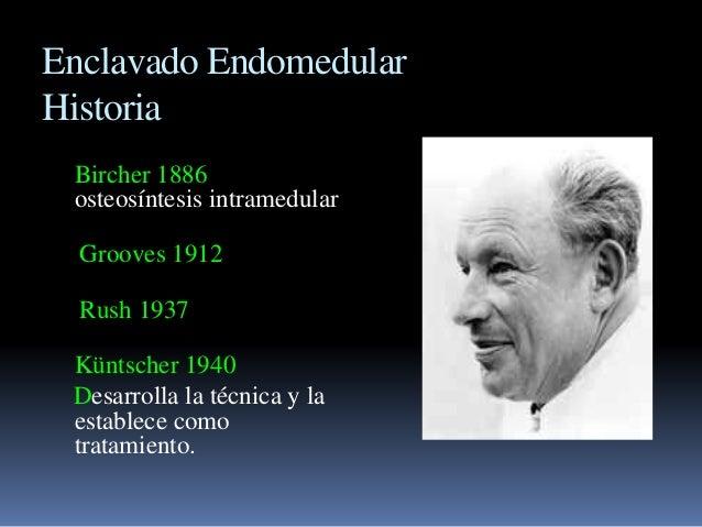 Enclavado Endomedular  Historia  Bircher 1886  osteosíntesis intramedular  Grooves 1912  Rush 1937  Küntscher 1940  Desarr...