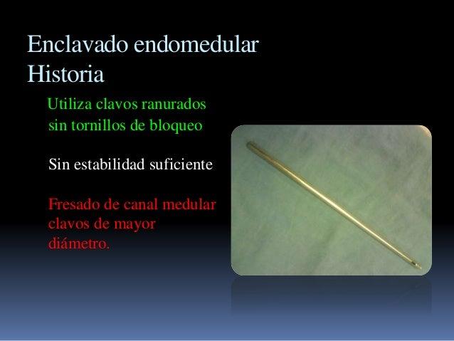 Enclavado endomedular  Historia  Utiliza clavos ranurados  sin tornillos de bloqueo  Sin estabilidad suficiente  Fresado d...