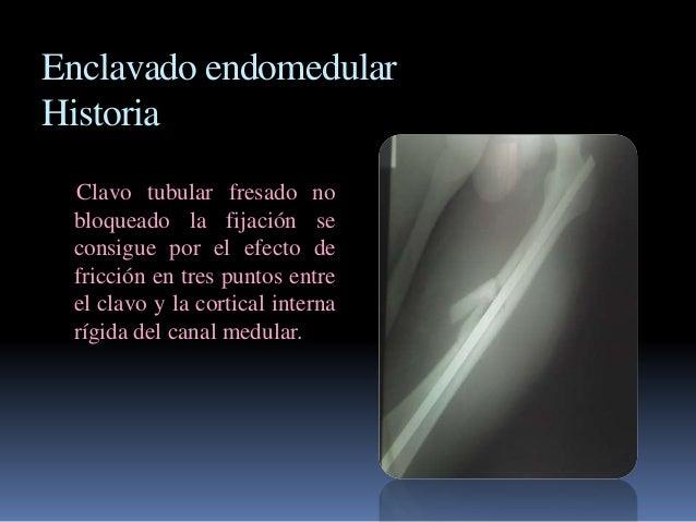 Enclavado endomedular  Historia  Clavo tubular fresado no  bloqueado la fijación se  consigue por el efecto de  fricción e...