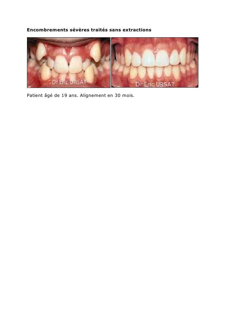 Encombrements sévères traités sans extractions<br />Patient âgé de 19 ans. Alignement en 30 mois.<br />Exempl...
