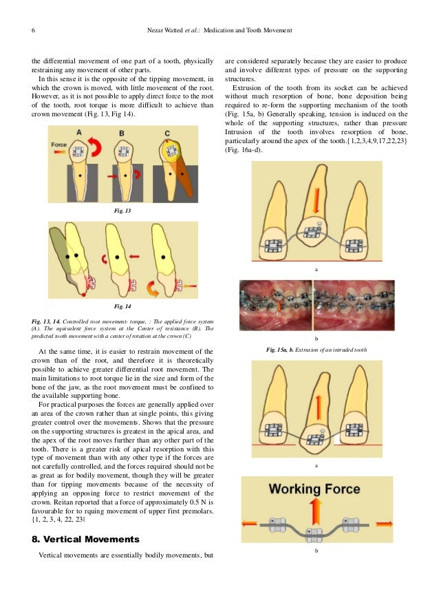 medication and tooth movement