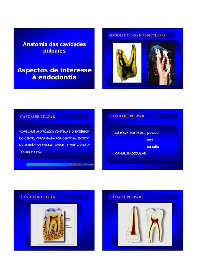 11 AnatomiaAnatomia dasdas cavidadescavidades pulparespulpares AspectosAspectos dede interesseinteresse àà endodontiaendod...